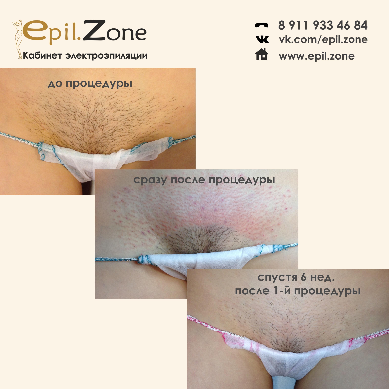 ГОЛЫЕ БЕРЕМЕННЫЕ  Порно фото беременных секс с голыми